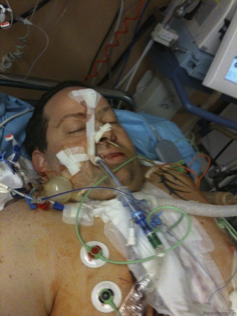 Bäda liegt vor seinem Tod 5 Tage auf der Intensivsation, er wird beatmet und hat viele Schläuche um sich herum