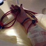 sich selbst punktieren ist die größter Hürde auf dem Weg zur Heimdialyse