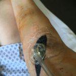 Vac Pumpe bei einem Shuntinfekt nach einem Shuntverschluss
