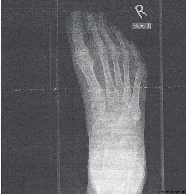 Mein Fuß, ein Opfer der Herztransplantation