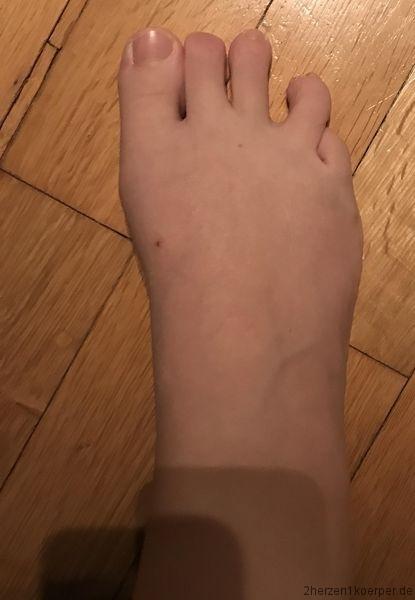 Der Fuß vor der zweite OP