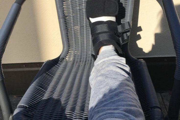 Der Fuß nach der zweiten OP im Verbandsschuh