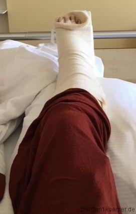 Der Fuß in der Gipsschiene nach der ersten OP