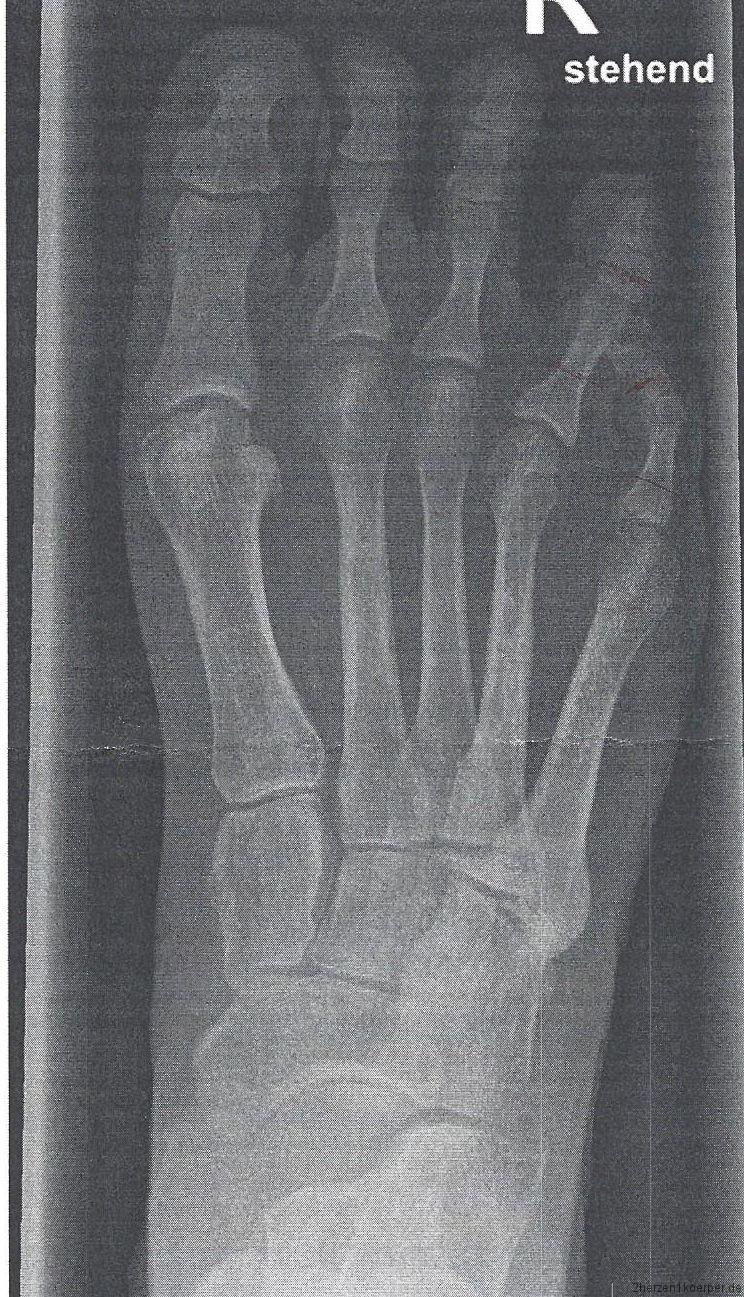 Röntgenbild vom Fuß nach der ersten OP