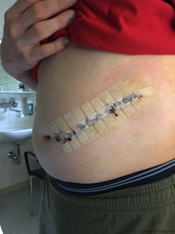Die Spendernarbe bei der Nierenlebendspende ist ca. 15 ca lang.
