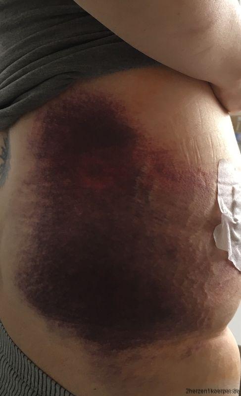 Bluterguss nach der Nierenlebendspende