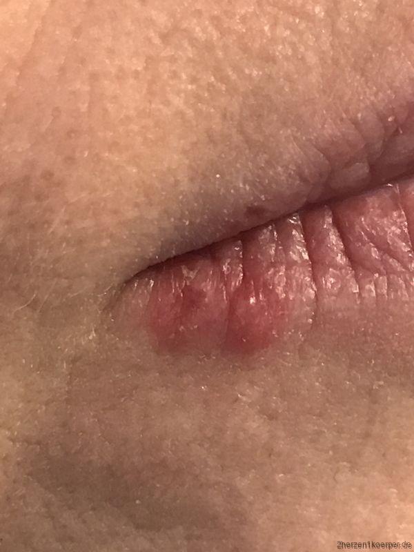 Herpes ist ein mieses Schwein das von hinten zuschlägt